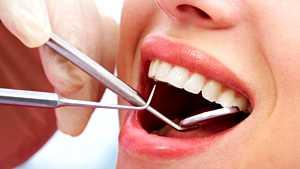 Milloin olet viimeksi käynyt hammaslääkärillä? Huono suuhygienia voi olla hengenvaarallista