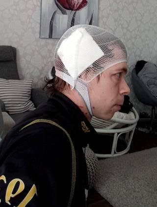 Ari-Pekka Ahon haava on peitetty siteellä.