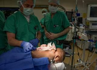 Useita tunteja kestäneeseen operaatioon osallistui viisi kirurgia ja yli 50 lääkäriä.