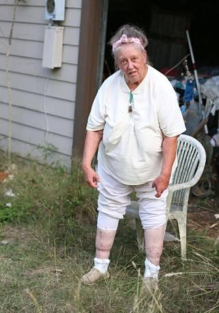 Shelley Duvall esitteli huonokuntoisia jalkojaan kuvaajalle. Duvall väitti Dr. Philin ohjelmassa, että hänen jalkaansa on asetettu minidisc.