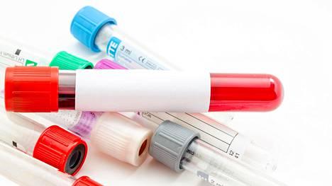 Suomessa hemoglobiinin normaalit viitearvot ovat naisilla 117–155 g/l ja miehillä 134–167 g/l.