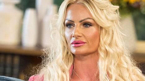 Kerry Milesin kauneusoperaatio meni vuonna 2016 pahasti pieleen. Hänen mukaansa kesti pari vuotta ennen kuin hänen huulensa näyttivät taas normaaleilta.