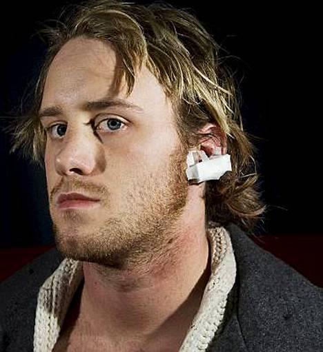 Oslolainen Per-André Ruud menetti palan korvastaan, kun vampyyriasuun pukeutunut mies hyökkäsi puremaan.