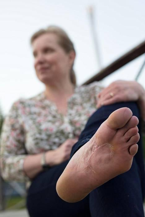 Melanooma löytyi Eijan jalkapohjasta.