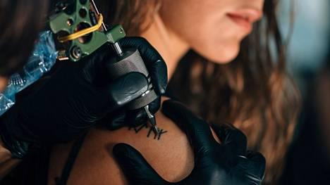 Tatuoinnin poisto sopii yleensä myös kipuherkälle: laserointi on niin nopeasti ohi, ettei kipu ehdi käydä sietämättömäksi.