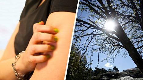 Kevätaurinko saa joillain puhkeamaan ikävän vaivan: kutisevan ja kirvelevän aurinkoihottuman.