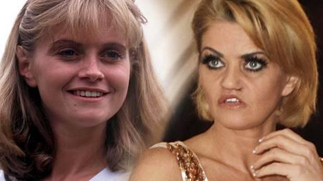 Kokaiinin käyttö turmeli Danniella Westbrookin ennen niin kauniit kasvot.