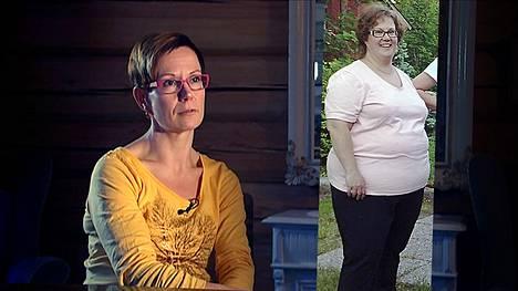 Kati Jylhä kertoo hurjasta painonpudotuksestaan tänään Akuutissa (TV1 klo 18.30).