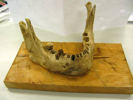 Iin Haminan hautausmaalta löytyi esimerkiksi vainajan alaleuan luu.