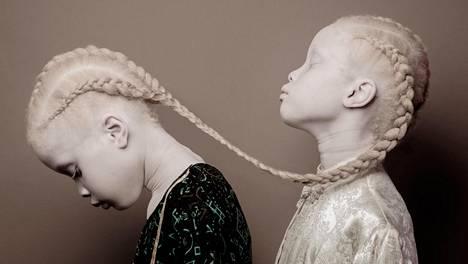 Kaksossiskosten Lara ja Mara Bawarin iho ja hiukset ovat albinismin takia täysin vaaleat.