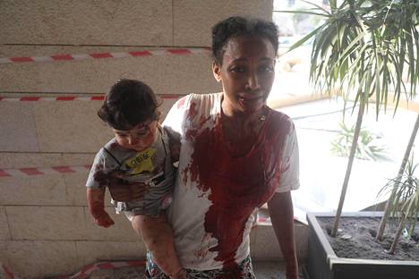 Räjähdyksessä haavoittunut nainen kantoi lastaan.