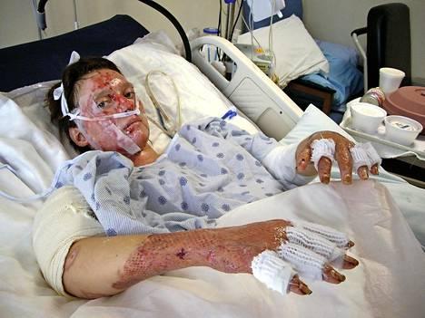 Ulrika Björkstamin ihosta paloi onnettomuudessa 40 prosenttia.