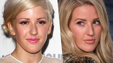 Muun muassa artisti Ellie Goulding on täyttänyt huuliaan.