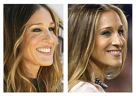 Sarah Jessica Parker ennen ja jälkeen oletetun luomileikkauksen.