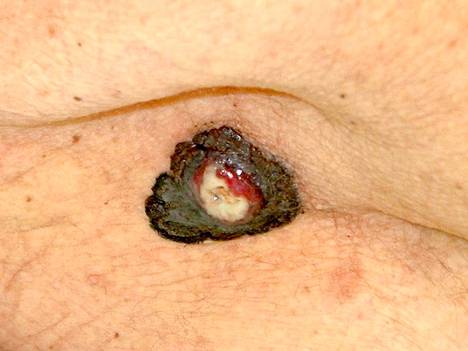 Melanooma matkii usein hyvänlaatuisia ihomuutoksia.  Tätä voisi luulla vanhuksen tyypilliseksi rasvaluomeksi, mutta ihomuutoksen haavautuminen on aina hälytysmerkki. Kuvan melanooman koko noin 1,5 cm.