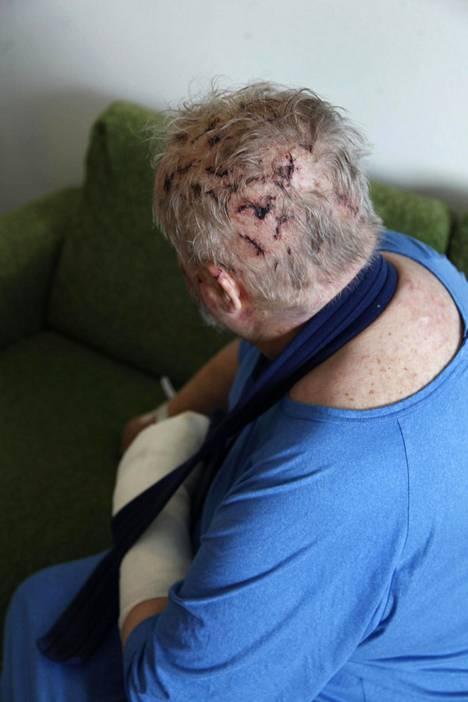 Tampereen yliopistollisessa sairaalassa Katajalla todettiin muun muassa kallonmurtuma ja aivoverenvuoto. Lisäksi peukalo ja kolme kylkiluuta oli murtunut.