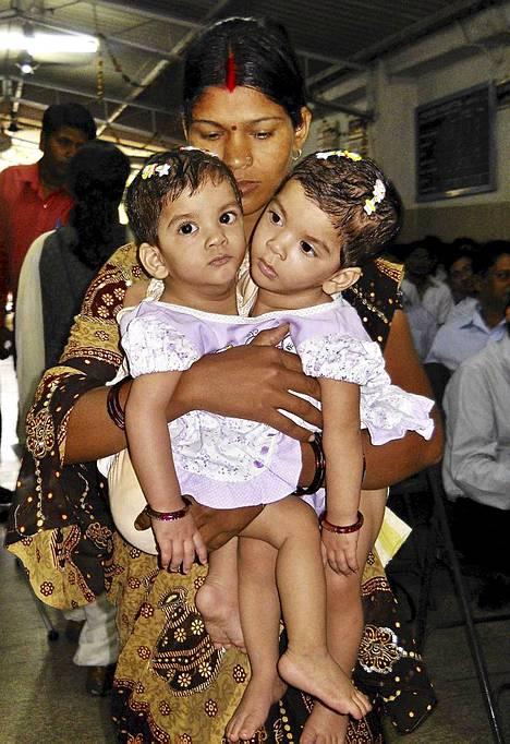 Intialaisäiti Maya Yadav pitää sylissään siamilaisia kaksosiaan Stutia ja Aradhnaa sairaalassa Betulissa. Lääkäreistä ja muista intialaisista sekä kansainvälisistä asiantuntijoista koostuva 34 hengen tiimi on aloittanut kirurgisen toimenpiteen, jolla vuoden vanhat kaksoset erotetaan toisistaan.