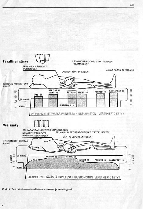 Arkistokuva vuodelta 1980. Kuvassa näytetään, millaisia eroja on nukuttaessa tavallisessa vuoteessa ja vesisängyssä. Vesisängyssä selkärangan asento on sen mukaan hyvä: nikamien välilevyt eivät puristu.
