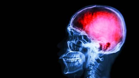 Aivoinfarkti on suomalaisten neljänneksi yleisin kuolinsyy ja merkittävin aikuisiän vammaisuutta aiheuttava sairaus.