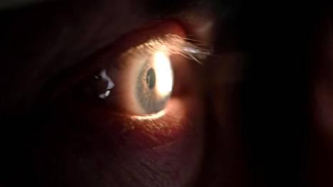 Glaukoomasta käytettiin ennen nimitystä viherkaihi. Se on näköhermoa vahingoittava sairaus, joka voi hoitamattomana johtaa näön menetykseen. Tilastollisesti glaukooma on vielä nelikymppisillä harvinainen sairaus.