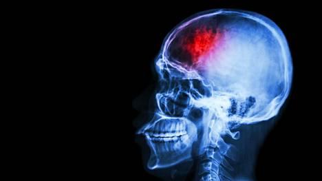 Sairastuminen ei aina katso ikää – joka neljäs aivoverenkiertohäiriön saaneista on työikäinen.