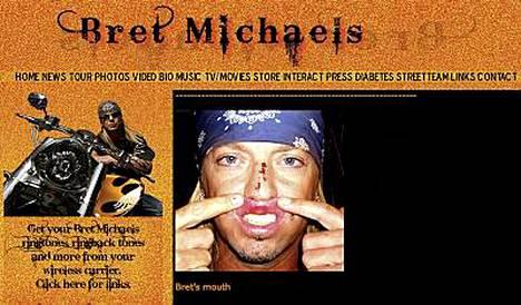 Bret Michaels sai lavasteesta päähän Tony Awardseissa.