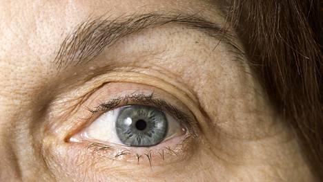 Silmänpaineen alentaminen on ainoa tunnettu hoito glaukoomaan.