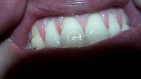 –Tässä on saatu hampaat sähköhammasharjalla puhtaaksi. Hän selvästikkin pitää huolta hampaistaan, mutta harja on laitettu aina ienrajaan, niin että ien on vetäytynyt ja hampaan juurenpää on tullut näkyviin.