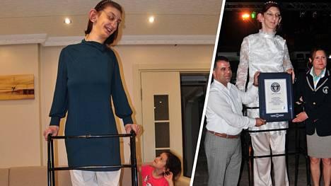 Guinnessin maailmanennätyksen 215.16 senttimetrin pituudellaan tehneellä Rumeysa Gelgillä on erittäin harvinainen Weaverin oireyhtymä.