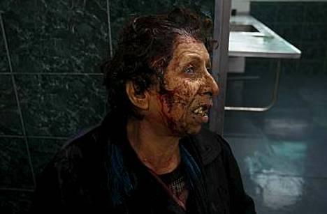 Haavoittunut palestiinalaisnainen sai hoitoa Shifan sairaalassa Gazassa.