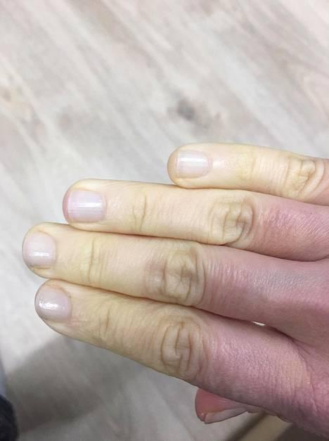 Kun valkoisuus alkaa hälvetä, sormet pistelevät, ovat kipeät ja voivat vaihtaa väriä sinertävän violetiksi.