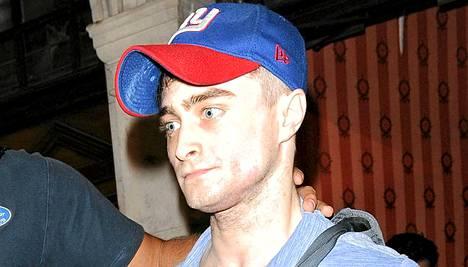 Daniel Radcliffe ei näytä terveeltä.