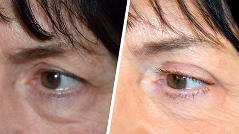 Yläluomileikkaus tuo silmän ulkonurkan ja luomivaon esiin roikkuvan luomen alta.