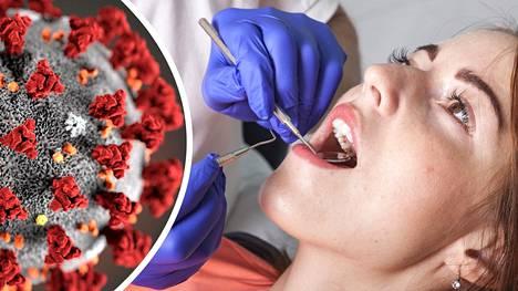 Hammaslääkärit ovat huomanneet, että koronaepidemia on saanut monet jättämään käynnin vastaanotolla väliin.