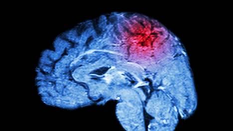 Aivoinfarkti ei katso ikää – jos nämä oireet iskevät, ei pidä soittaa mihinkään muualle kuin 112:een