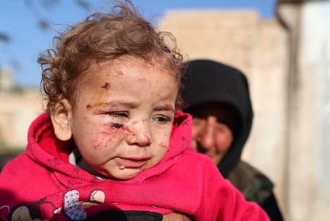 Nainen piteli Syyrian hallituksen pommituksessa loukkaantunutta tyttöä Turkin rajan tuntumassa sijaitsevassa pakolaisleirissä 21. marraskuuta.