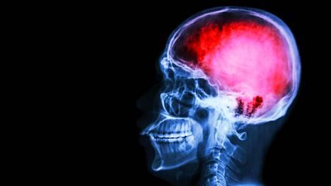 Aivokasvaimen oireet riippuvat sen sijainnista kallon sisällä. Samantapaisia oireita voivat aiheuttaa myös yleisemmät verenkiertohäiriöt.