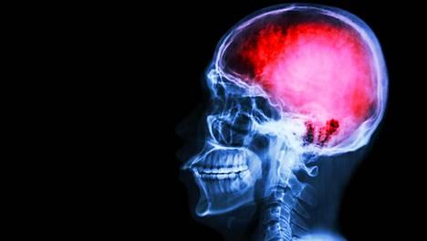 18000 suomalaista saa vuosittain aivoinfarktin. Sitä ei osata arvioida, paljonko aivoinfarkteja jää toteamatta, mutta professorin mukaan ilmiö on yleinen.