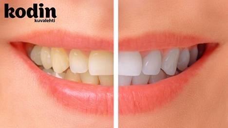 Ei ihan ilmaista. Hammashoitolassa hammasrivistön valkaisusta saa pulittaa satasia. Kuvituskuva.