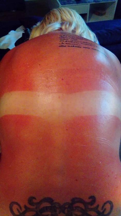 Jo yhden hellepäivän jäljiltä iho voi näyttää tältä.