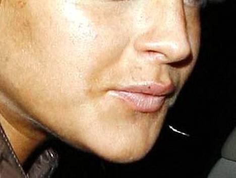 Lindsey Lohan kuvattiin huuli turvoksissa kollageenihoidon jäljiltä.