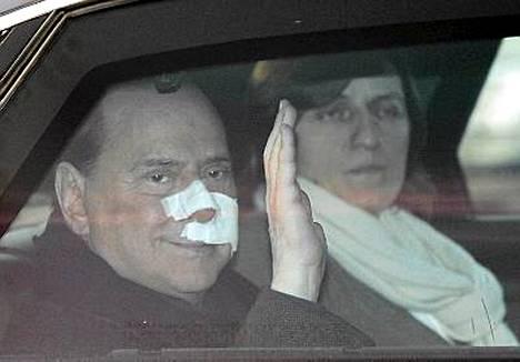 Kirkon pienoismallista kasvoihinsa saanut Berlusconi on toipumassa vammoistaan.