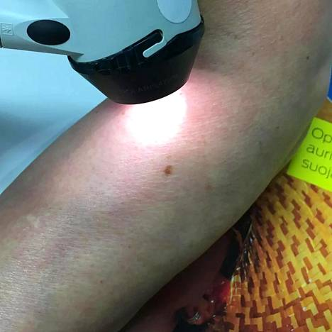 Luomia ja ihomuutoksia tutkitaan dermatoskoopilla.