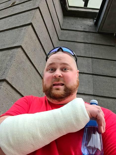 Akseli Herlevin käsi on kipsissä useiden viikkojen ajan sähköpotkulautaonnettomuuden takia.