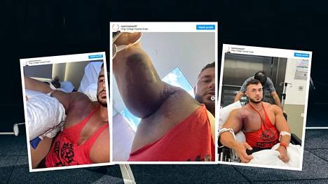 Ryan Crowley kertoi vakavasta loukkaantumisestaan Instagramissa.
