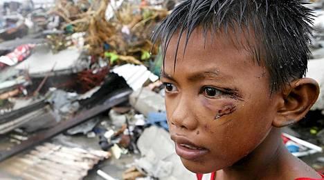 Ilmassa lentävä roju osui pientä poikaa kasvoihin Taclobanissa.