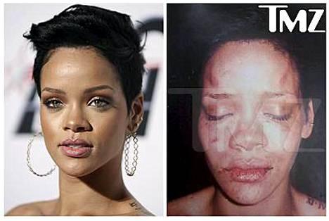 Oikeanpuoleisessa kuvassa Rihanna pahoinpitelyn jäljiltä.