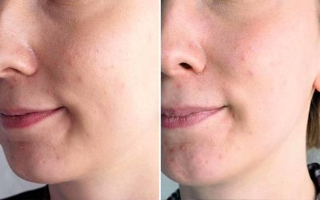 Vasemmanpuoleisessa kuvassa iholla on sekä pohjustus- että meikkivoidetta. Oikeanpuoleisessa kuvassa pelkkää meikkivoidetta. Kuvat on otettu, kun meikki on ollut iholla noin 9 tuntia.