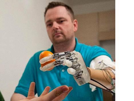 Dennis Sørensen sanoo, että älyproteesi yhdistyi aivoissa elävään haamukäteen ja tuntui melkein yhtä oikealta kuin normaali käsi.