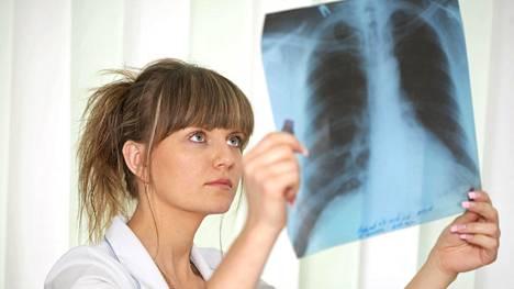 Keuhkosyöpä löydetään valitettavan usein vasta sitten, kun alkuperäinen kasvain on jo ehtinyt lähettää etäpesäkkeitä muualle elimistöön.